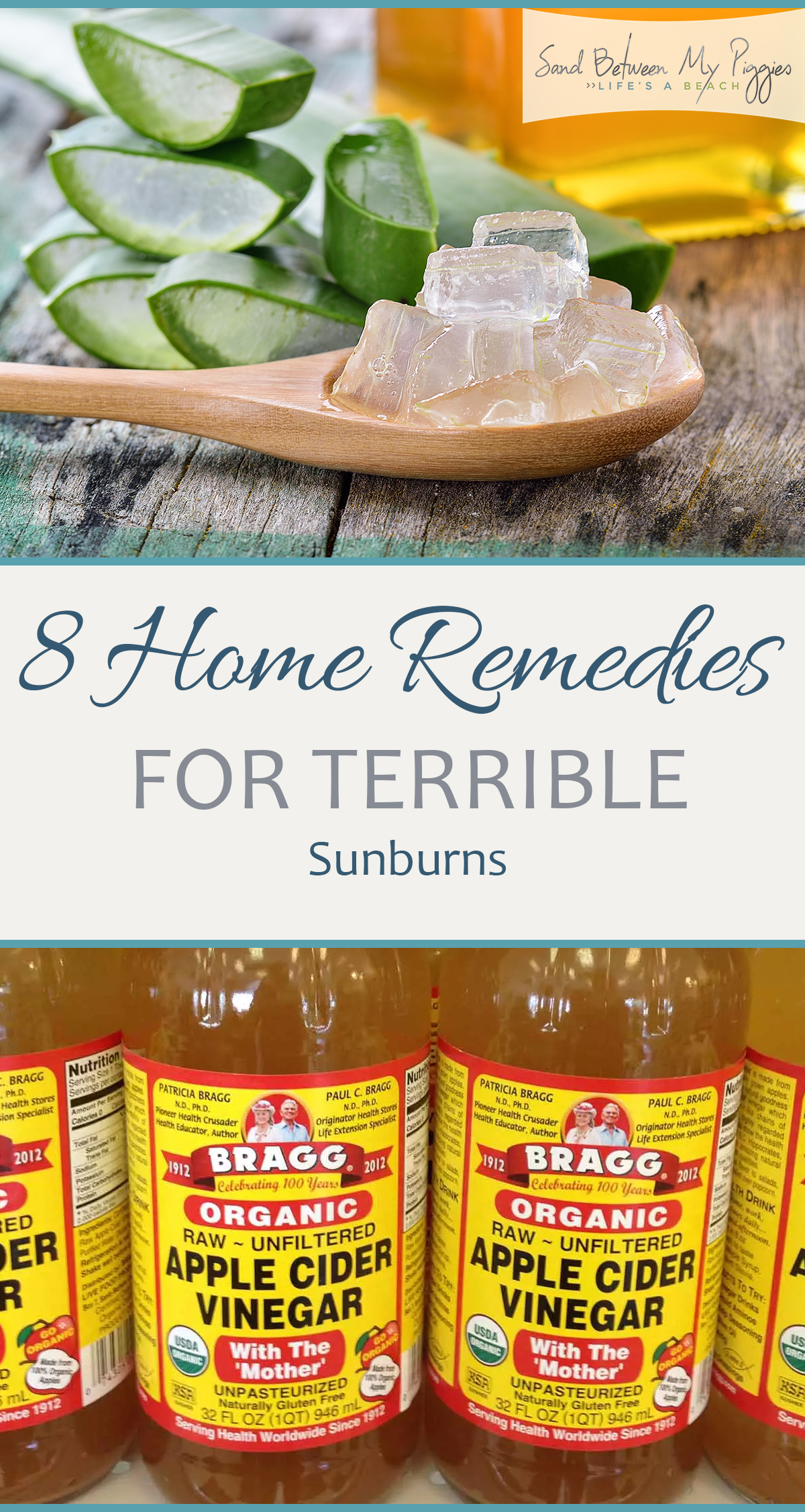 8 Home Remedies for Terrible Sunburns| Home Remedies, Home Remedies for Sunburns, Sunburn Remedies, Fast Ways to Help Sunburns, Natural Living, Natural Remedy for Sunburns